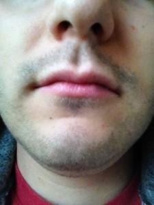 Cancer Beard