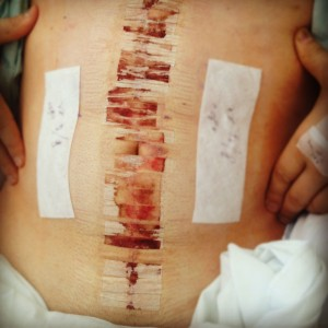 In Hospital Incision Picture